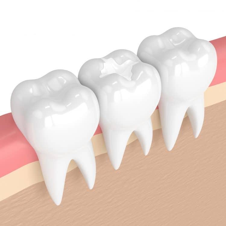 3d render of teeth