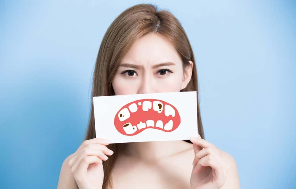 cavities on teeth